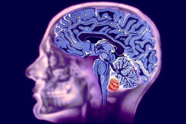 mrt-golovnogo-mozga-kogda-zachem-naznachaiut
