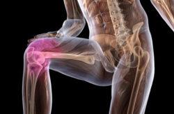 Сделать МРТ коленного сустава