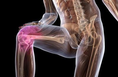 Коленный сустав мрт сильно болит сустав на локте какие обезболивающие пить