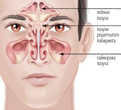 КТ придаточных пазух носа