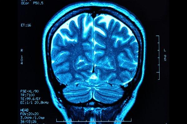 Что лучше - МРТ или УЗИ головного мозга?